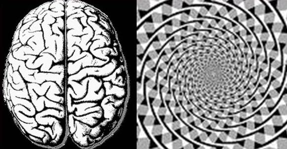 brain-big2