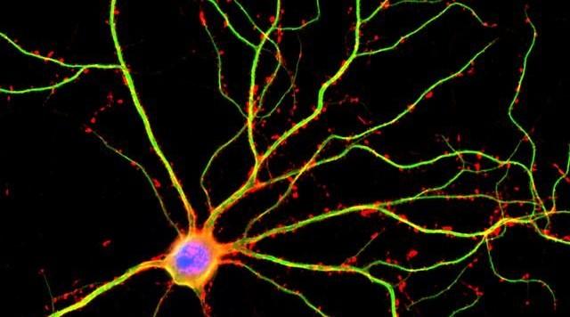 Gli scienziati dell'UCLA hanno scopertto che I dentriti (mostrat in verde) non sono asssolutamente semplici trasportatori I corrente elettrica tra neuroni.  Fonte: Shelley Halpain/UC San Diego